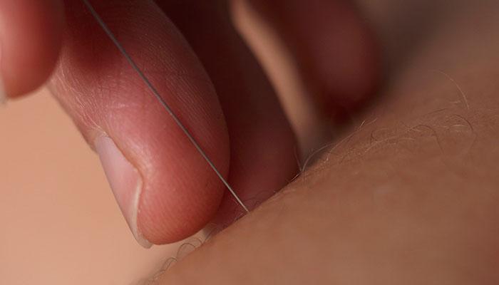 acupunctuur helvoirt